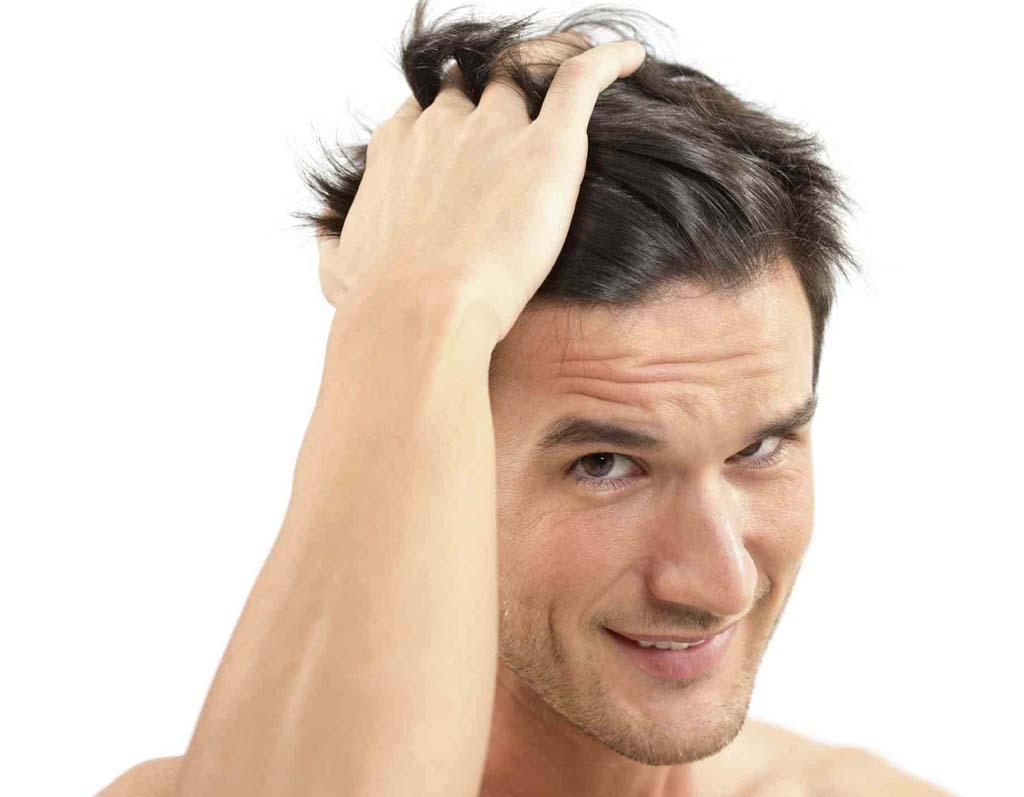 greffe de cheveux Tunisie